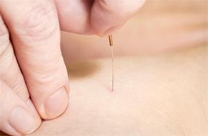 Phương pháp chẩn đoán trong châm cứu chữa bệnh